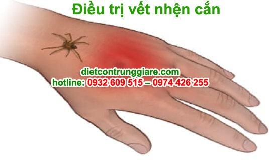 cách điều trị vết nhện cắn